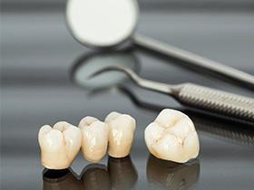 γέφυρες, στεφάνες, προσθετολόγος, προσθετική επί δοντιών, αποκατάσταση απώλεια δοντιου